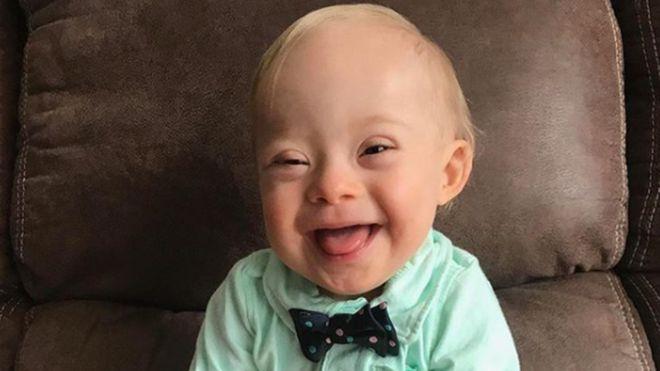 Хлопчик з синдромом Дауна став обличчям компанії «Gerber»