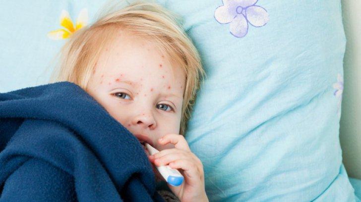 На Волині – понад 600 випадків захворюваності на кір