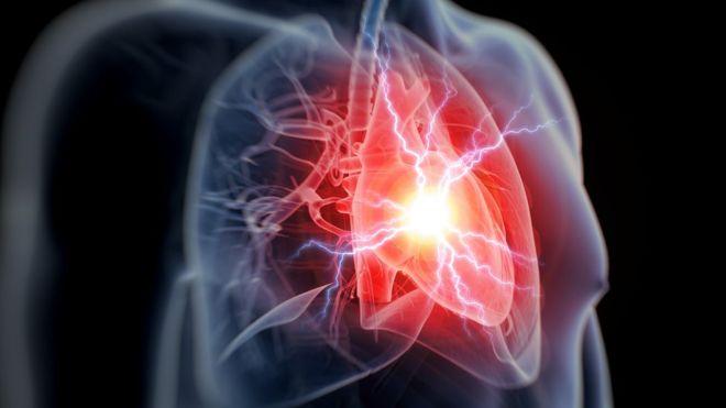 Вчені зможуть запобігти серцевим нападам