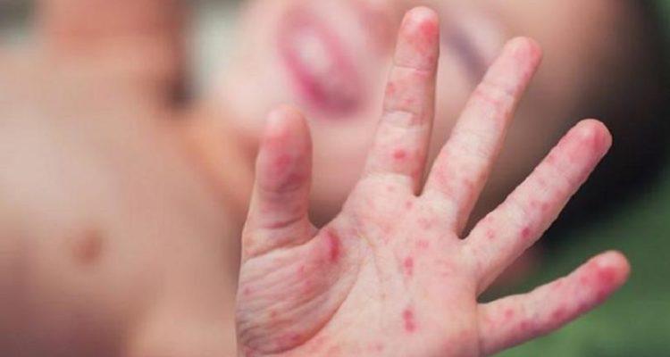 Волинь за рівнем захворюваності на кір займає сьоме місце по Україні