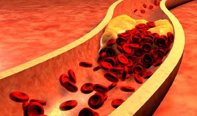 Волинянам проведуть безплатні аналізи на холестерин
