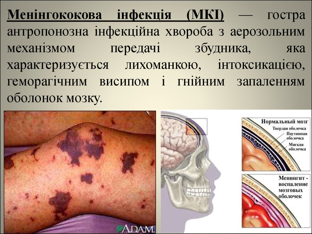 У Луцьку виявили небезпечну інфекцію у студента першого курсу