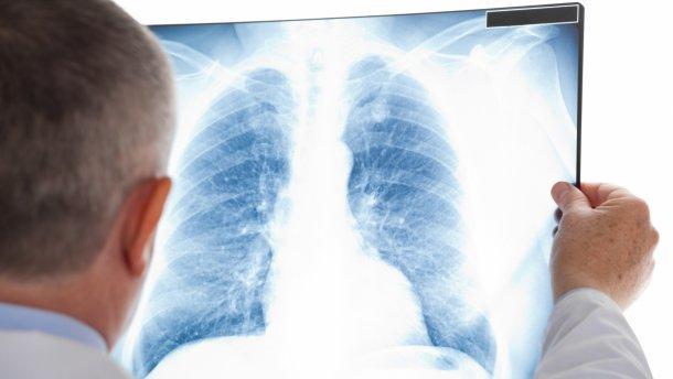 В Україні створили онлайн-скринінг для перевірки на туберкульоз