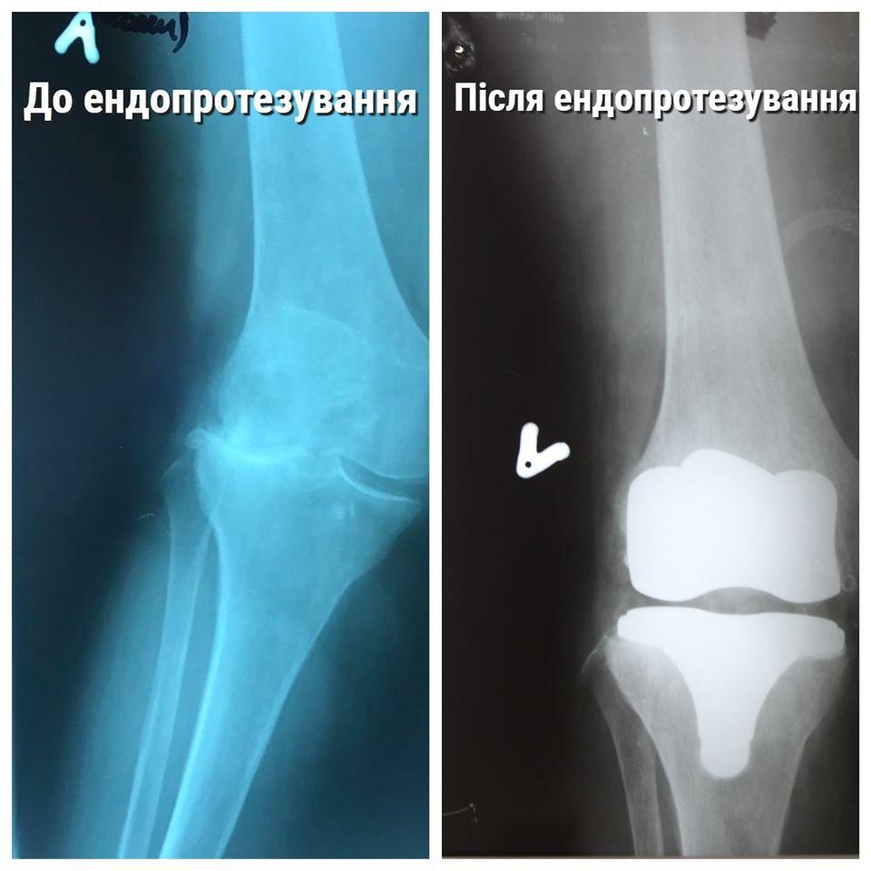 У ковельській лікарні жінці протезували колінний суглоб. ФОТО