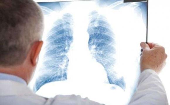 На туберкульоз на Волині протягом року захворіли 664 особи