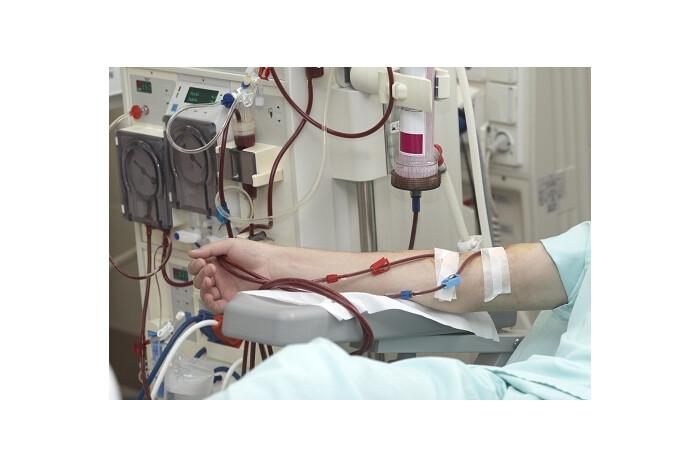 Лучан, хворих на ниркову недостатність, возитимуть на процедури за кошти міського бюджету