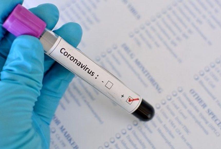 У Нововолинську за добу виявили лише один випадок COVID-19