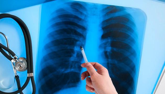 В Україні за місяць – майже тисяча випадків туберкульозу