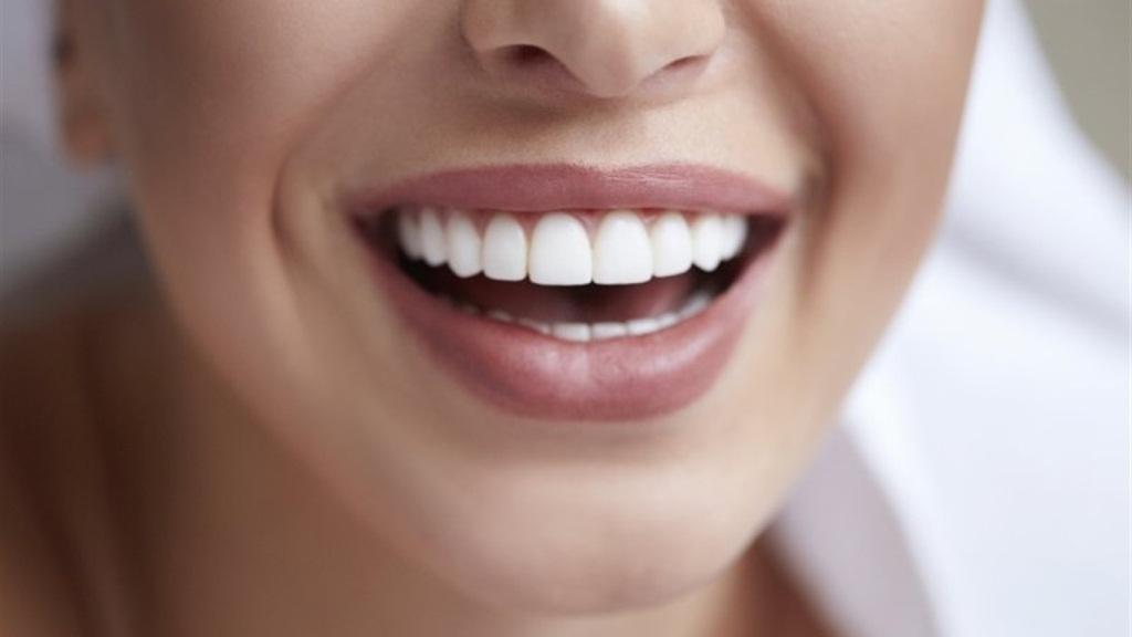 Відбілювання зубів у домашніх умовах: 7 популярних міфів*