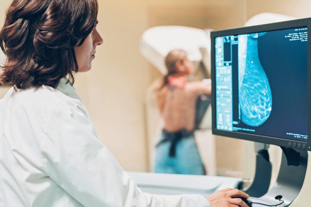 Жителькам Боратинської громади пропонують безплатно зробити мамографію