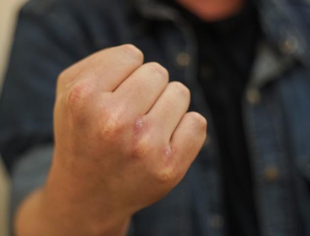 Встановили особу зловмисника, який вчинив розбійний напад у Луцьку